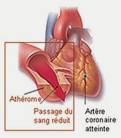 Le cholestérol et les maladies coronariennes