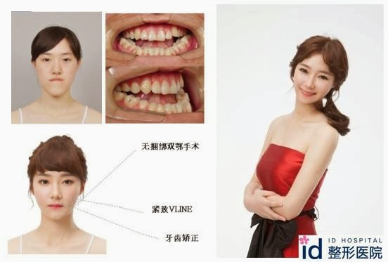 Id Hospital Korea Plastic Surgery Extreme Makeover Where Is The