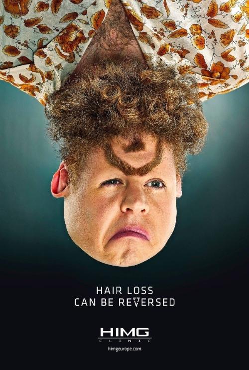 Реклама клиники по восстановлению волос HIMG