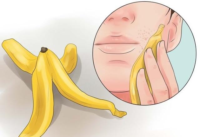 Manfaat Kulit Pisang Buat Kesehatan Anda Hotcopas