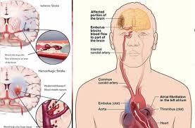penyempitan pembuluh darah di otak