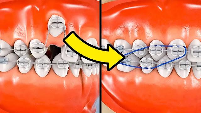 كيف يتم تقويم الأسنان