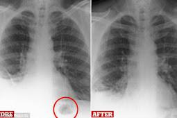 40 Tahun Mainan Ada di Paru-paru, Begini Bentuknya Saat Ini