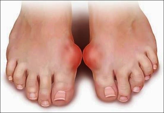 Thực Phẩm Bệnh Gout