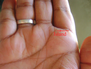 Island on Heart Line    Under Mount of Jupiter:  Disease related to lungs and throat or defamation/loss due to love/affair.