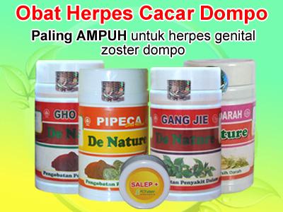 Obat Tradisional Penyakit Dompo Herpes Genitalis