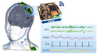 low cost microcontroller based spirometer biology essay A review of wearable sensors and systems with application in rehabilitation  shyamal patel, hyung  journal of neuroengineering and rehabilitation20129: 21.