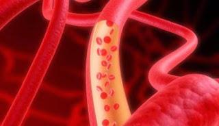 7 makanan alami melancarkan sirkulasi darah anda