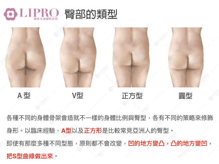 臀腿抽脂 蜜桃臀 大腿抽脂 臀部抽脂 腿部二次重修