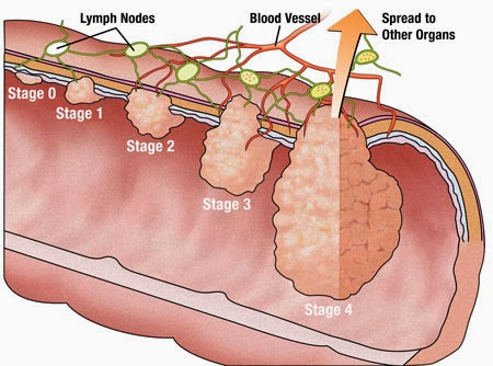 colon cancer causes, symptoms, diagnosis, treatments and side, Cephalic Vein