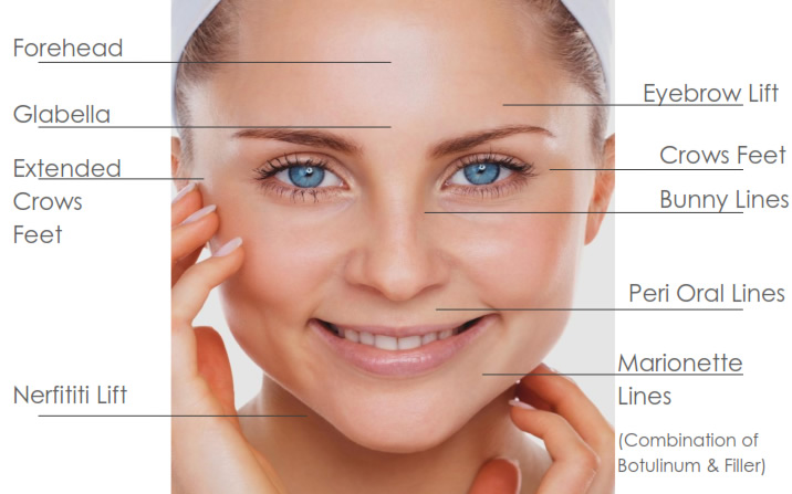 All you need to know about botox skincare villa most people get it to eliminate aging and wrinkle signs from their skinople also get it done to gain a more structured jaw line and to work on solutioingenieria Choice Image