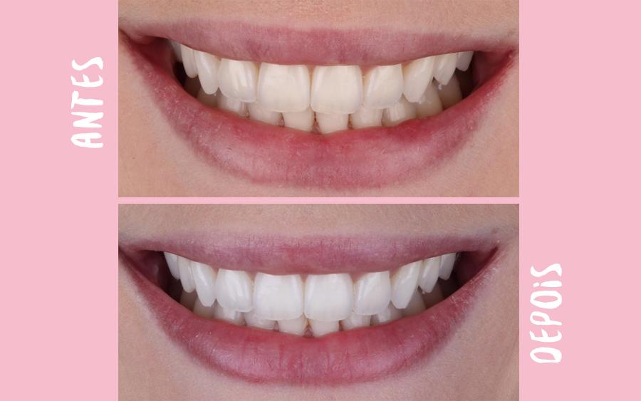 Camilarech Com Br Tudo Sobre Meu Clareamento Dental Facil Rapido