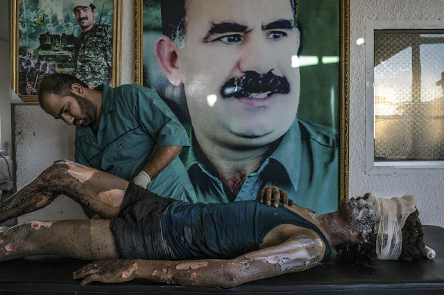 Green Pear Diaries, fotografía, World Press Photo Contest 2016, IS Fighter Treated at Kurdish Hospital, Mauricio Lima