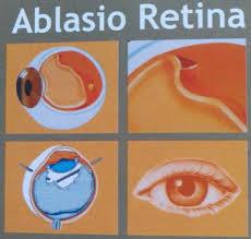 Nama Obat Ablasi Retina Di Apotik