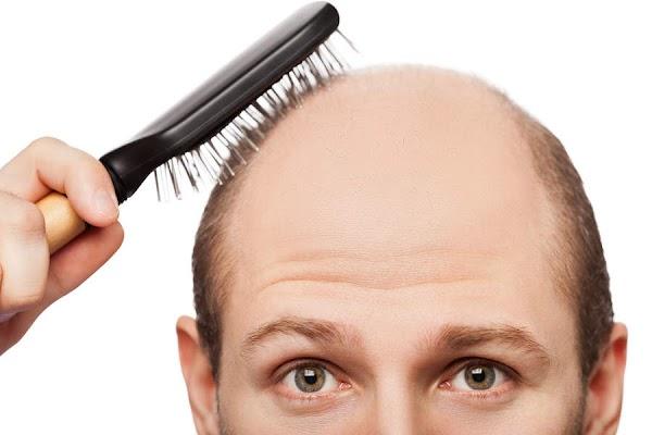 पुरुष करें ये 5 काम, एक हफ्ते में झड़ना बंद हो जाएंगे बाल