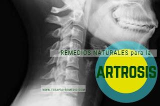Remedios caseros para la artrosis, enfermedad articular.