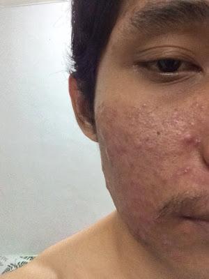 Muka Pecah Teruk Kini Bebas Jerawat Dengan Produk RM 7 je