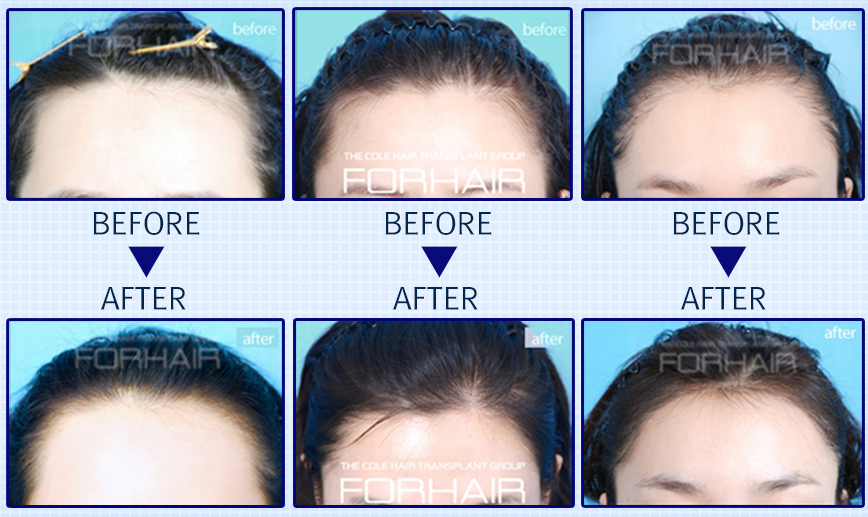 forhair korea before and after, female hairline correction, hairline correction before and after