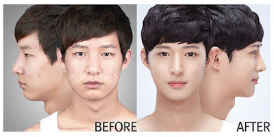 wonjin beauty medical group plastic surgery case undercover 5