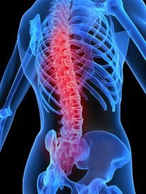terapi kiropraksi - hyde therapist