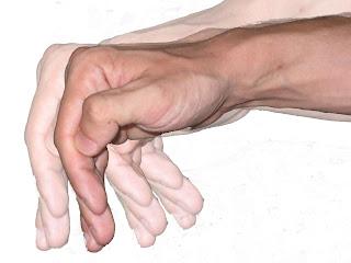 Penyebab Parkinson dan Pengobatannya