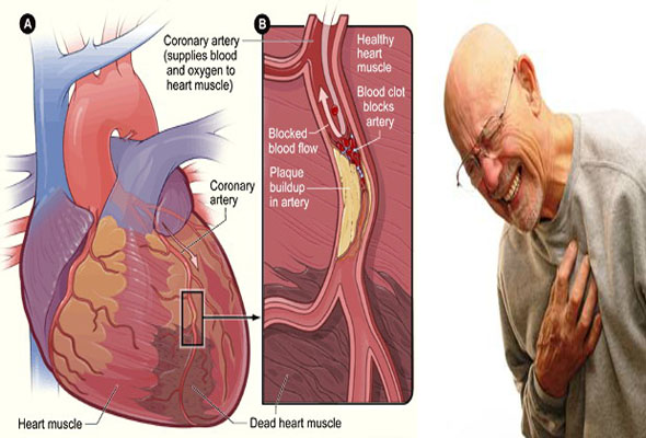 waspadai penyakit jantung korener hindari ikuti tipsnya disini