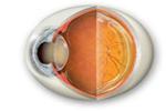 Las cataratas, una de las afecciones oculares