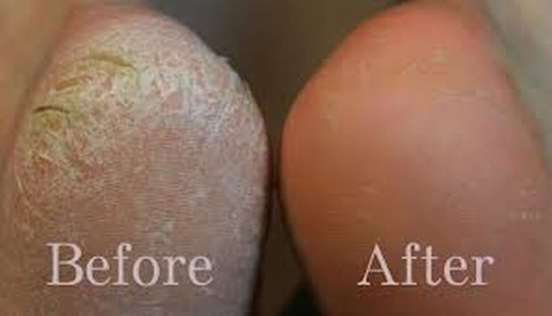 HOW TO CLEAN THE FEET ??? IT'S VERY EASY TRY THIS AND THE RESULTS ARE INCREDIBLE!!!