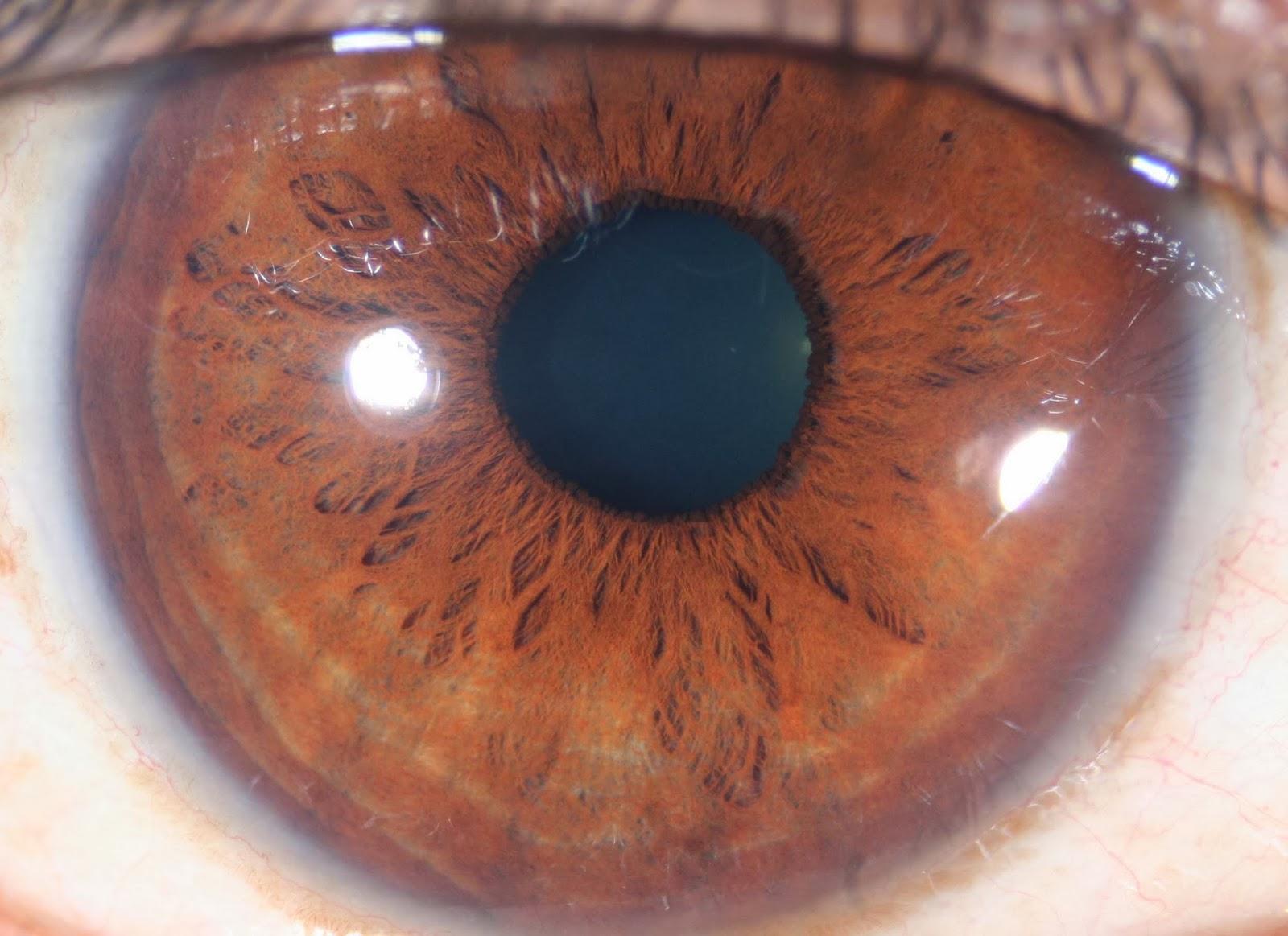 9e3a1f2ab2fa Modern   Multidimensional Iridology  The Inner Pupillary Border ...