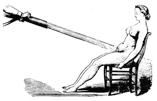 Струевой душ или душ Шарко в клинике Сальпетриер.  Фото из архивов госпиталя Сальпетриер.