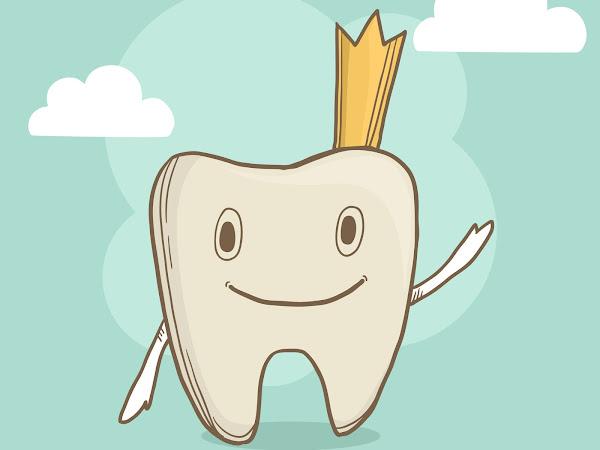 What are Supernumerary Teeth (extra teeth)?