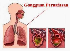 Obat untuk Gangguan Pernafasan