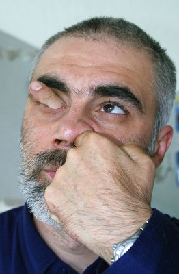 Art Blog Man Sticks A Finger In His Nose Through His Eye Socket