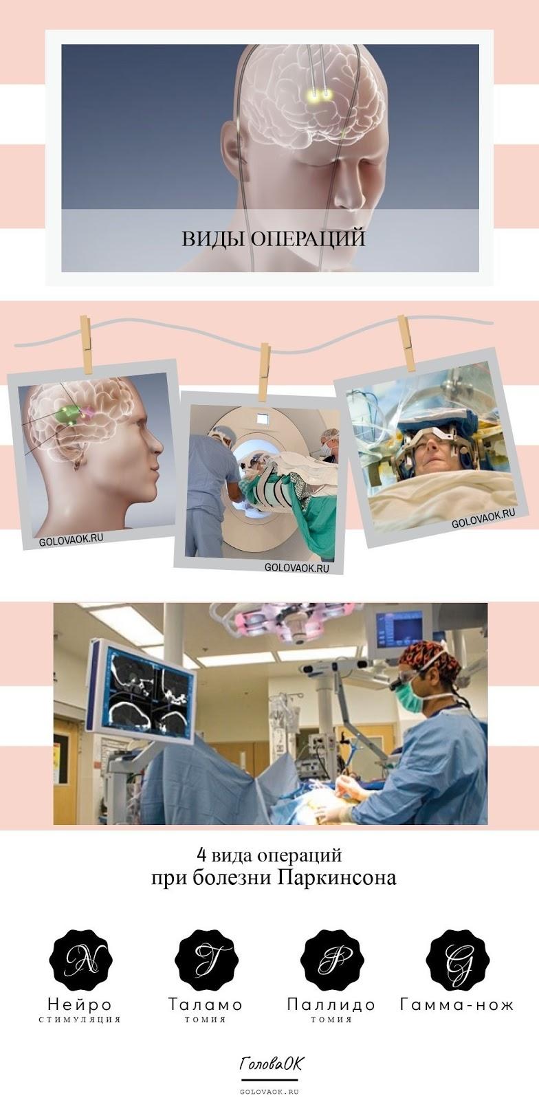 операция при болезни паркинсона