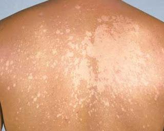 林口何文藻皮膚科診所(健保項目): 四月 2017