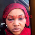 Mercy Aigbe Beaten And Battered By Her Husband (See Photos)