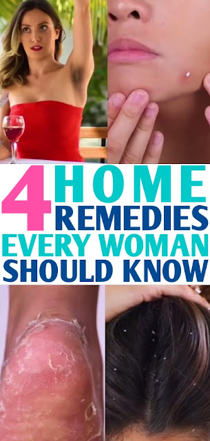 4 Home Remedies Every Woman Should Know