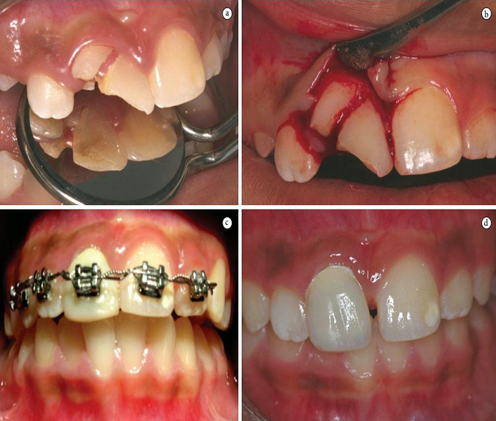 Fratura Protese Dental