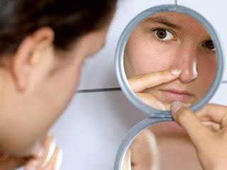 Tips Cara Menghilangkan Komedo di Hidung Secara Alami