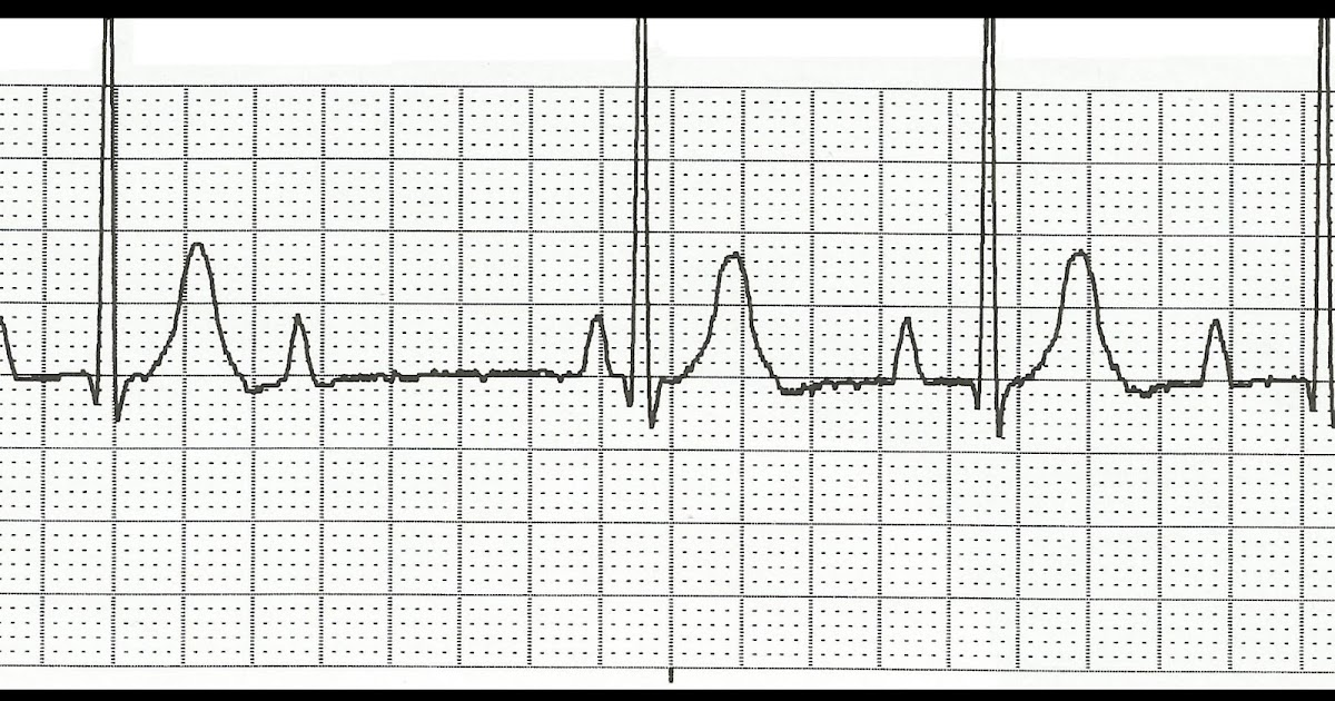 Float Nurse: EKG Rhythm Strip Quiz 157