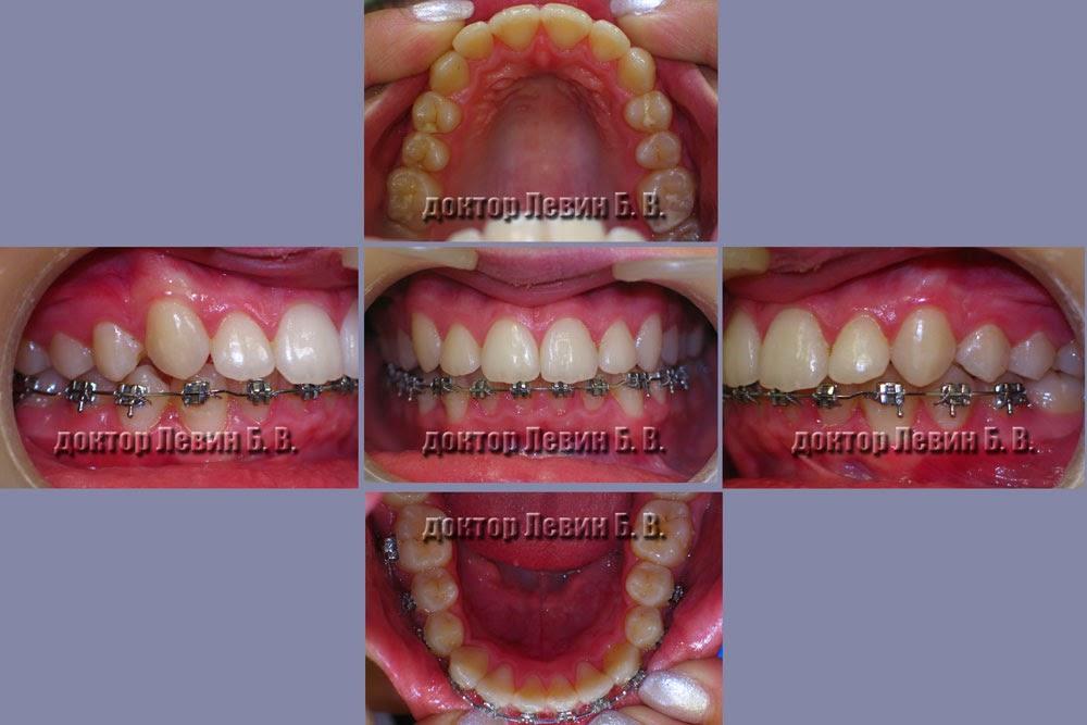 Обзорные снимки зубов пациента через 23 месяца ортодонтического лечения.