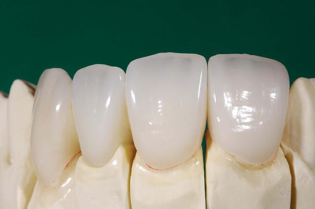 IPS e.max dental crown