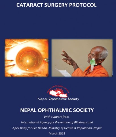 Cataract surgery protocal by Nepal Ophthalmic Society