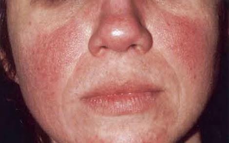 röd knottrig hud i ansiktet