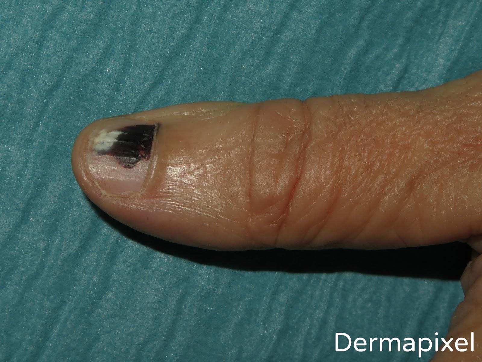 Dermapixel: Una uña negra