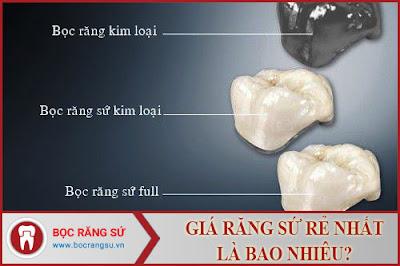 giá răng sứ rẻ nhất là bao nhiêu -1