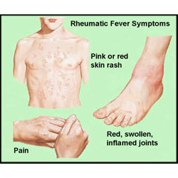 fever rheumatic Adult