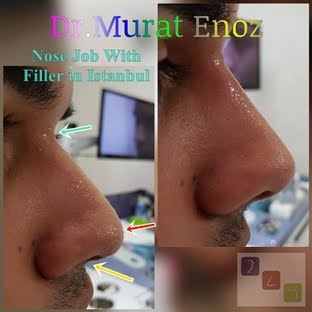 5 Minutes Nose Job With Filler in Istanbul