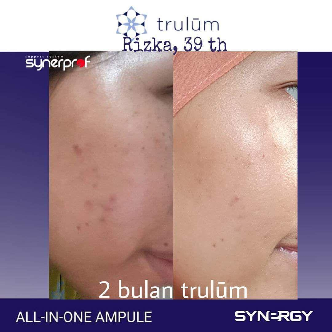 Jual Trulum Skincare Synergy Di Kualuh Hulu WA: 08112338376