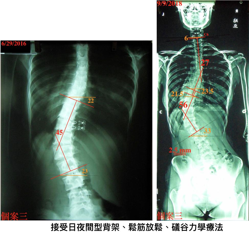脊椎側彎, 脊椎側彎 矯正, 脊椎側彎治療